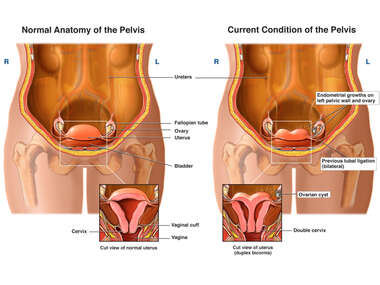 Normal Anatomy of the Female Pelvis vs. Duplex Bicornex- Double Uterus