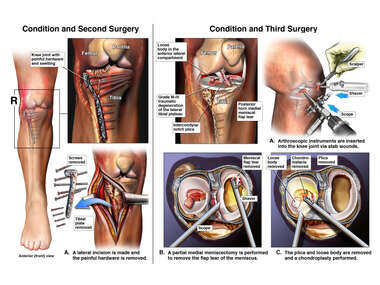 Subsequent Conditions with Second and Third Surgeries