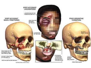 Post-accident Facial Injuries with Surgical Repairs