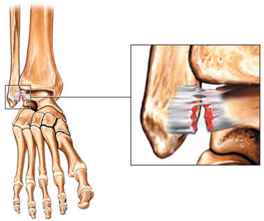 Sprained Ankle - Tear of the Talofibular Ligament