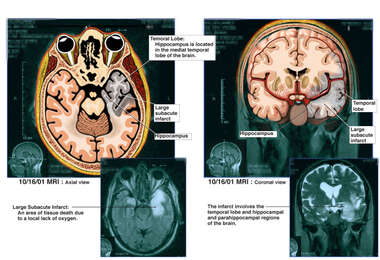 Left-sided Brain Infarct