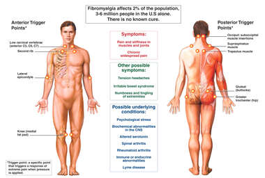 Fibromyalgia Syndrome (Male)