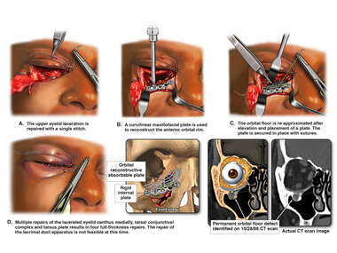 ORIF of Right Facial Fractures with Closure of Complex Lacerations