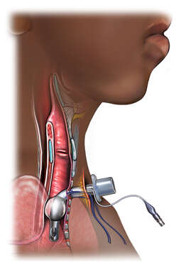 Tracheostomy - Lateral View