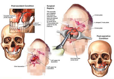 Multiple Facial Injuries with Surgical Repairs