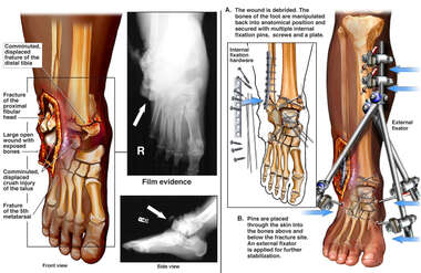 Right Ankle Fractures with Initial Surgical Fixation