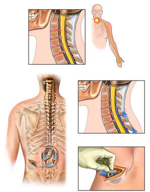 Cervical Spine Injuries and Radiating Pain with Surgical Placement of Spinal Cord Stimulator