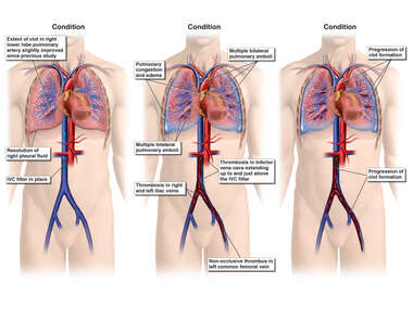 Progression of Blood Clots