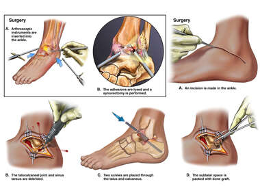 Left Ankle and Foot Injuries and Surgeries