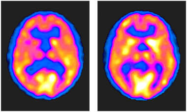 PET Scans Showing Axial View of the Brain