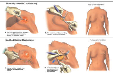 Lumpectomy Procedure vs. Modified Radical Mastectomy