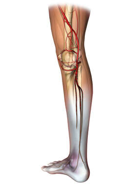 Posteromedial View of Right Leg Artery Anatomy with Popliteal Blood Clot