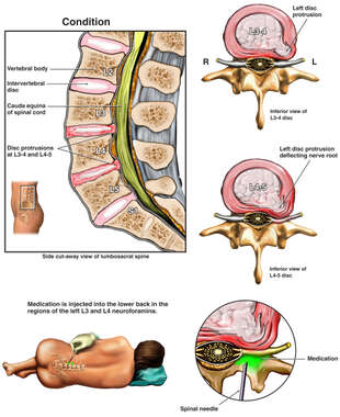 Lumbar Disc Injuries with Attempts at Pain Management