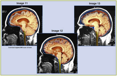 MRI Scans of Brain