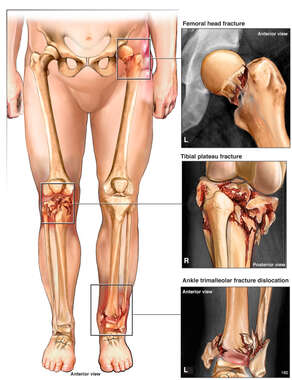 Lower Extremities with Pre-operative Fractures to the Left Hip, Right Knee and Left Ankle