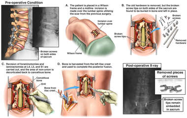 Post-operative Non-union with Additional Attempts at Spinal Fusion