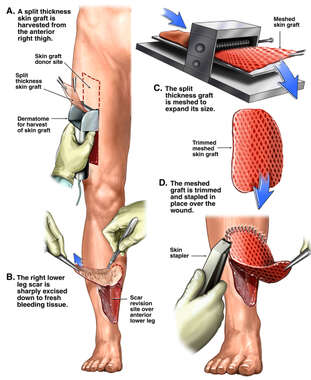 Debridement and Skin Grafting of Complex Lower Leg Wound
