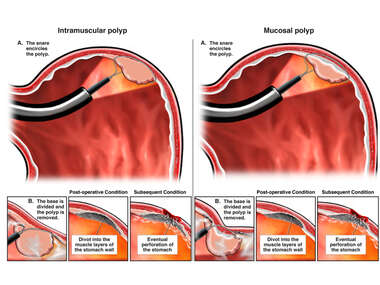 Endoscopic Snare Removal of Sessile Polyp