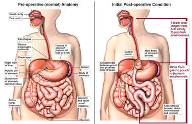 Roux-En-Y Gastric Bypass Procedure
