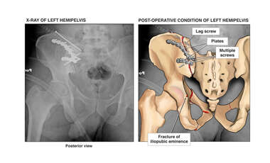 Post-Accident Pelvic Fractures with Posterior Surgical Fixation