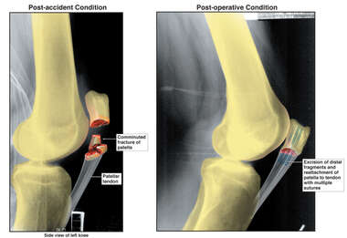 Left Patella Fracture with Surgical Fixation
