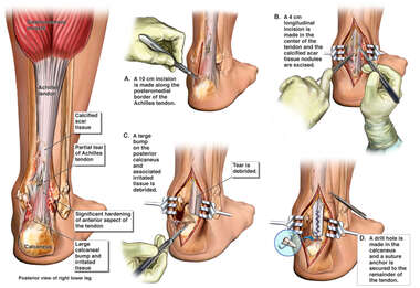 Partial Tear of the Achilles Tendon and/or Tendonitis with Surgical Repair