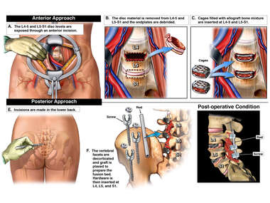 L4-5 and L5-S1 Lumbar Spine Anterior and Posterior Surgeries