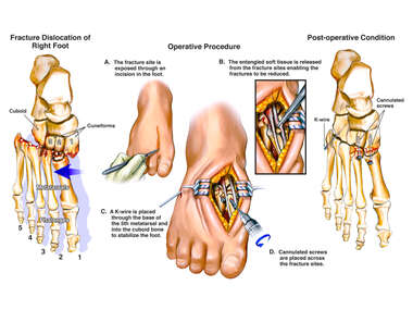 Traumatic Foot Fractures with Surgical Fixation