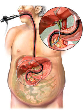 Endoscopic Retrograde Cholangiopancreatography (ERCP)