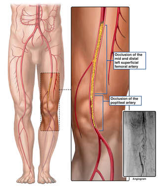Arterial Blockage of Left Leg (Pre-operative Angiogram)