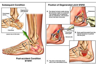 Left Calcaneal Fracture and Subsequent Joint Arthritis with Surgical Fusion