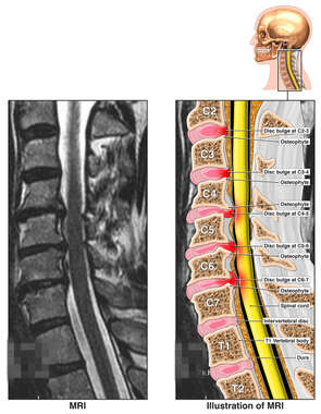 Cervical Spine Disc Bulges