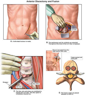 Lumbar Fusion Procedure