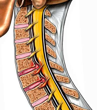 Cervical Disc Herniations at C5-6 and C6-7