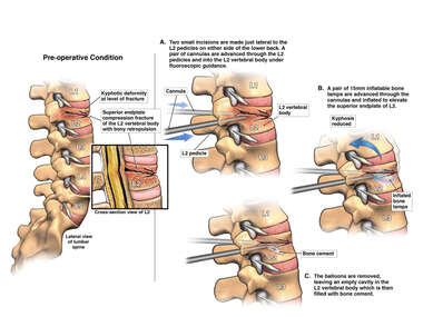 Lumbar Compression Fracture with Surgical Kyphoplasty