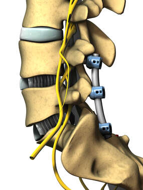Posterior Spinal Fusion Hardware