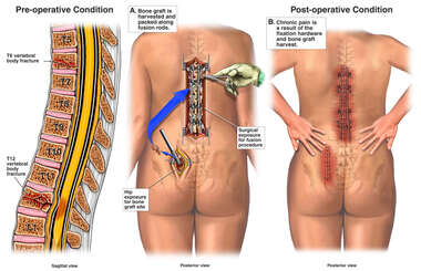 Multiple Spinal Fractures with Surgical Fixation and Chronic Post-operative Pain