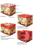 Classification of Skin Burns