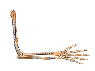 Bone Fracture Fixation of the Arm