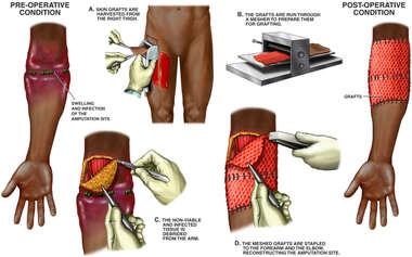 Additional Surgical Reconstruction of the Right Arm Injury Site