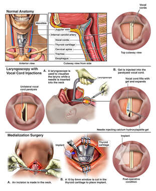 Post-operative Vocal Cord Paralysis with Multiple Injections and Surgical Repair