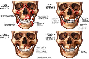 Traumatic Injury to the Skull and Jaw