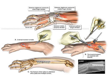 Surgical Fixation of Right Radial Fracture