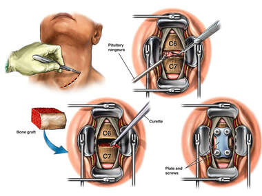 C6-7 Anterior Cervical Discectomy and Fusion.