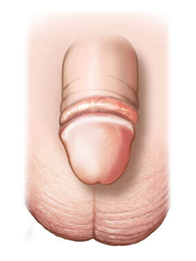 Anterior View of a Circumcised White Toddler Penis