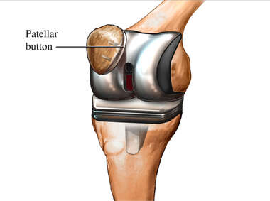 Total Knee Replacement: Prosthesis