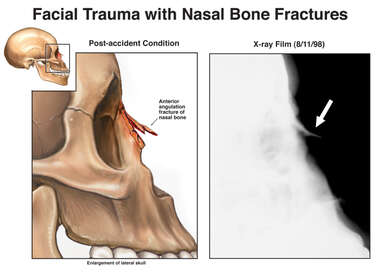 Facial Trauma with Nasal Bone Fractures
