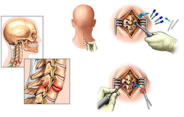 Cervical Spine Fractures with Surgical Fixation