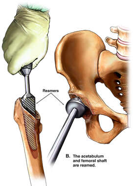 The acetabulum and femoral shaft are reamed