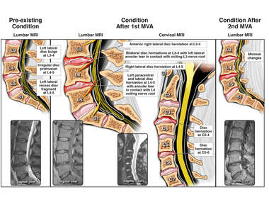 Progression of Lumbar Spine Injuries: Before MVA, after 1st MVA and 2nd MVA